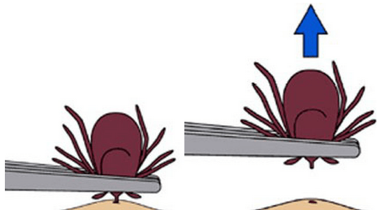 Illustration of a pair of tweezers grasping a tick between the head and the body, and pulling it straight up
